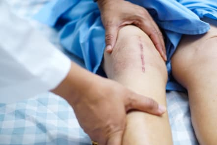 Common Complications That Occur After Surgery